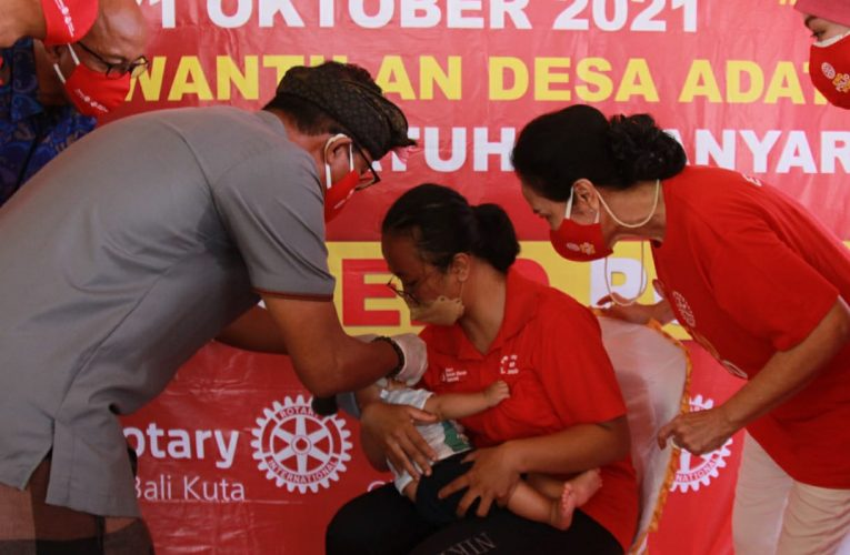 Gianyar dan Rotary District 3420 Gelar Kampanye End Polio
